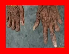 クレイジージャーニー パプアニューギニアのアンガ族は親戚が死んだら指を切り落とす